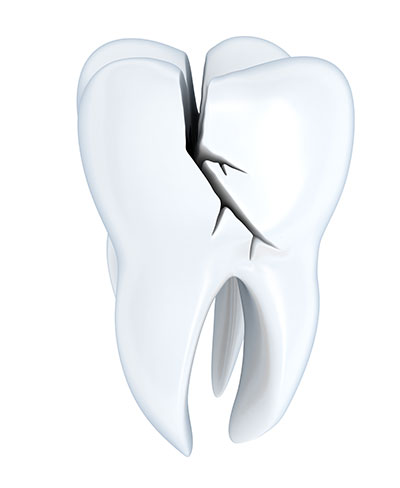 Signs You May Have a Broken Tooth